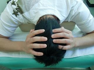 顎関節症 千葉県東金市 頭蓋骨矯正 施術前